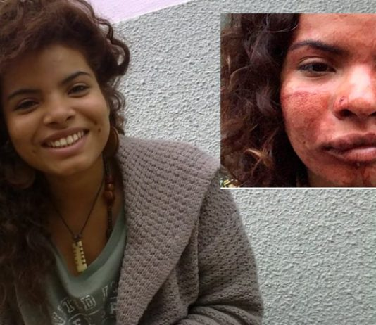 Colombiana-agredida-en-Portugal-racismo